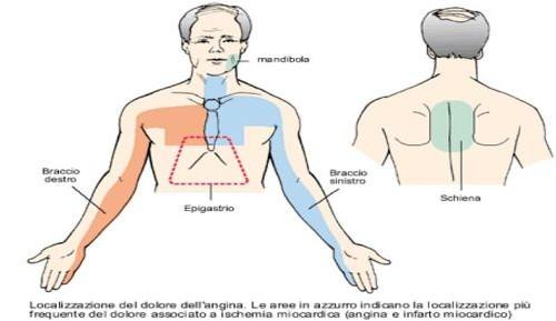 angina1