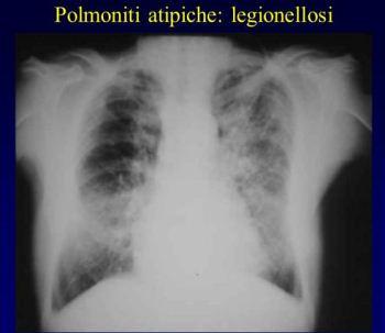 legionellosi