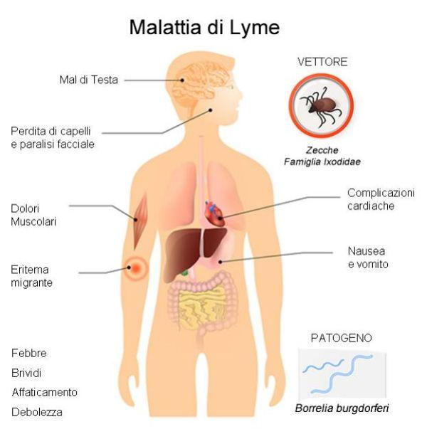 Influenza, la mappa dei sintomi